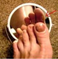 Kontrolle mit Spiegel