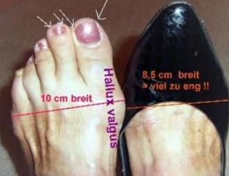 Schuh drückt