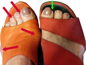 Breiter Fuß braucht weiten Schuh